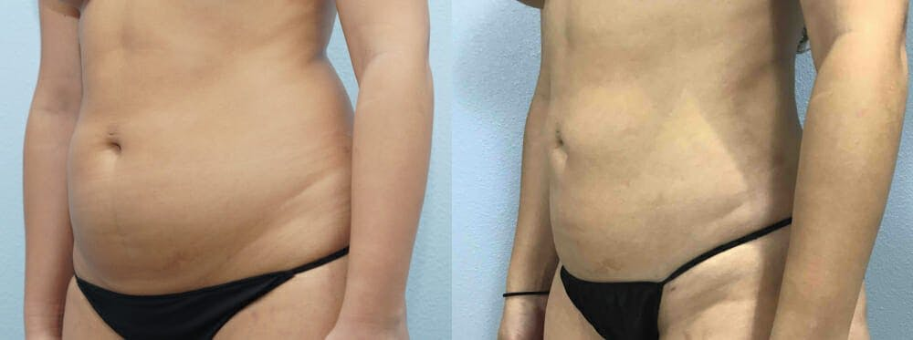Liposuction Gallery - Patient 47253763 - Image 2