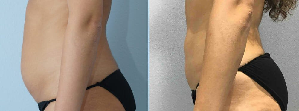 Liposuction Gallery - Patient 47253763 - Image 3