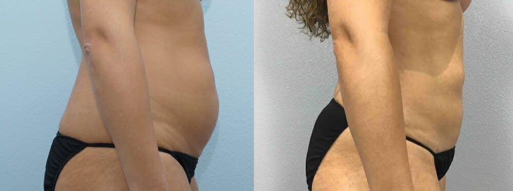 Liposuction Gallery - Patient 47253763 - Image 4