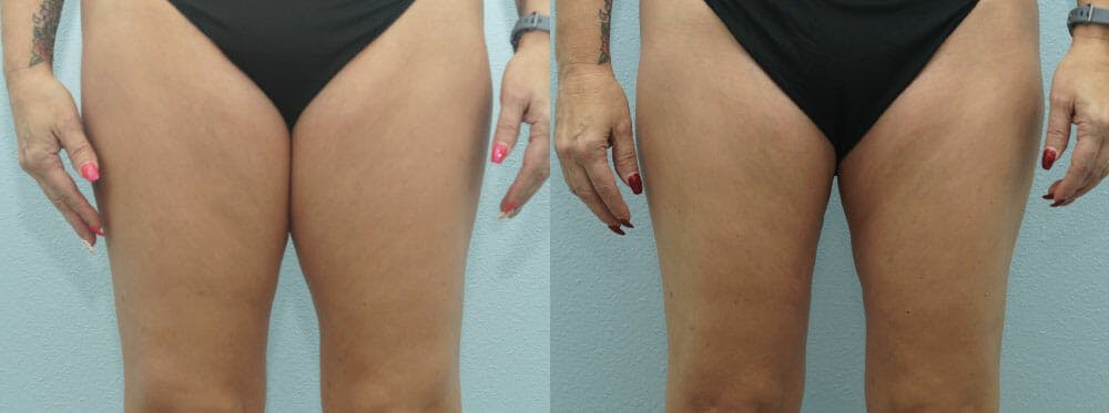 Liposuction Gallery - Patient 47253764 - Image 1