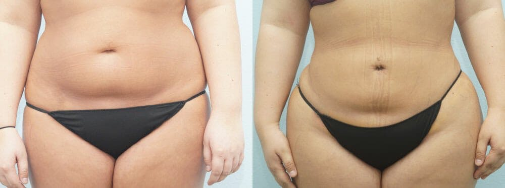 Liposuction Gallery - Patient 47253767 - Image 1