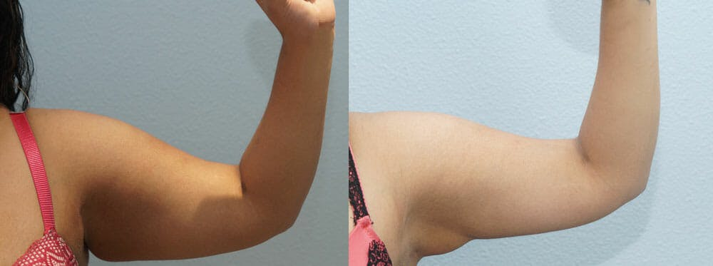 Liposuction Gallery - Patient 47253769 - Image 2