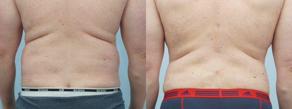 Liposuction Gallery - Patient 47253774 - Image 1