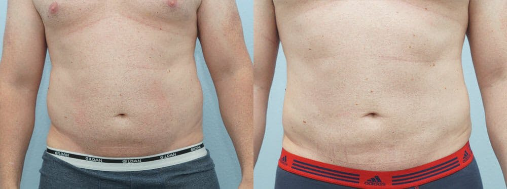 Liposuction Gallery - Patient 53590602 - Image 2