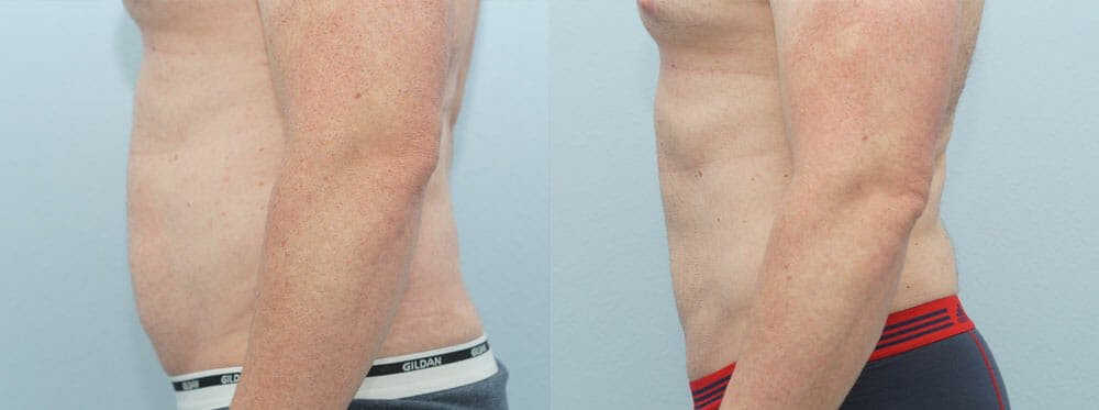 Liposuction Gallery - Patient 53590602 - Image 3