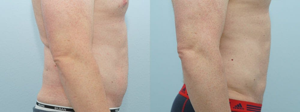 Liposuction Gallery - Patient 53590602 - Image 4