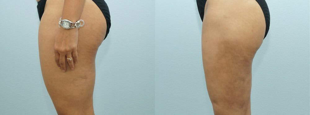 Liposuction Gallery - Patient 47253775 - Image 2