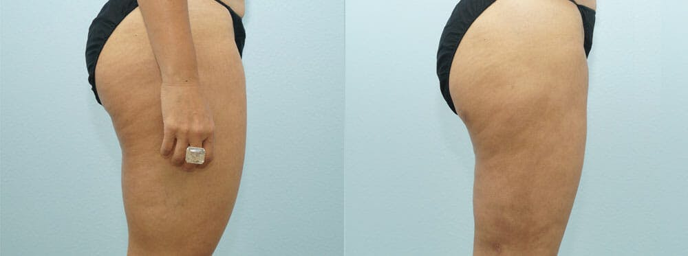 Liposuction Gallery - Patient 47253775 - Image 3