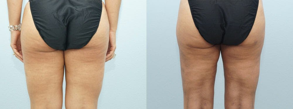 Liposuction Gallery - Patient 47253775 - Image 4