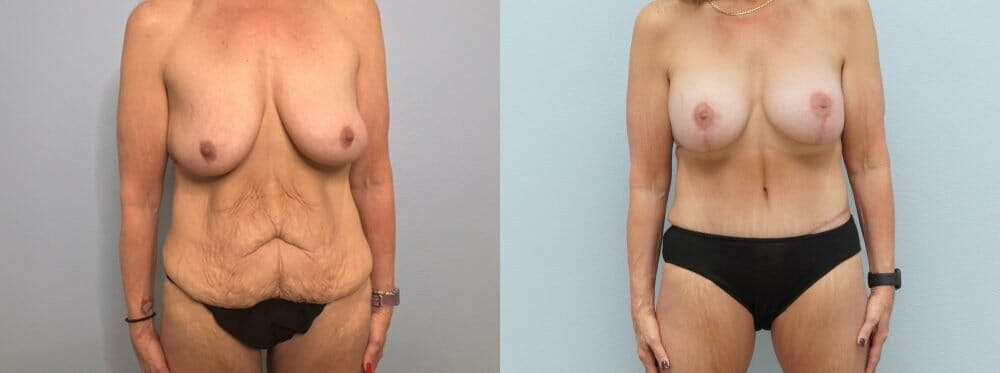 Mommy Makeover Gallery - Patient 47253781 - Image 1