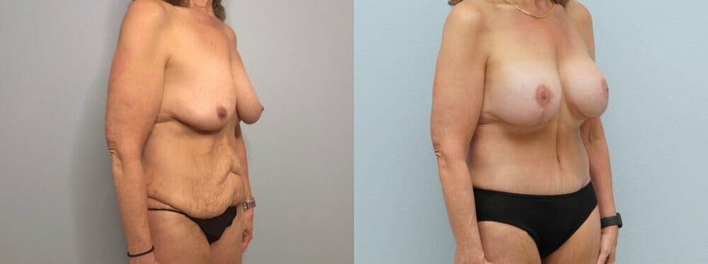 Mommy Makeover Gallery - Patient 47253781 - Image 3
