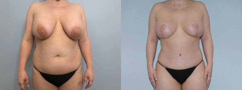 Mommy Makeover Gallery - Patient 47253791 - Image 1