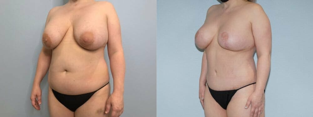 Mommy Makeover Gallery - Patient 47253791 - Image 3