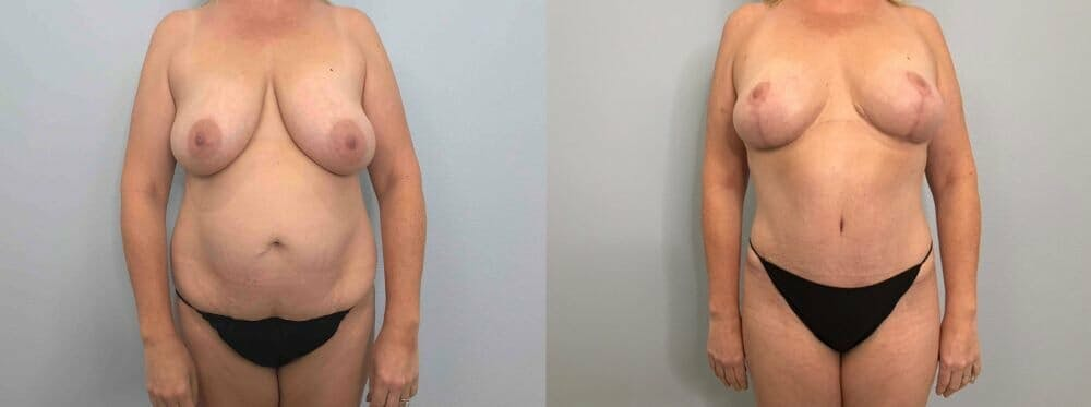 Mommy Makeover Gallery - Patient 47253799 - Image 1