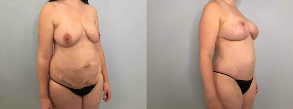 Mommy Makeover Gallery - Patient 47253812 - Image 3