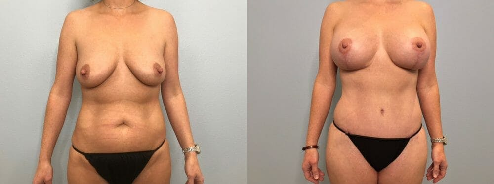 Mommy Makeover Gallery - Patient 47253824 - Image 1