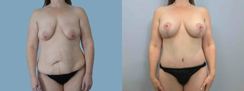 Mommy Makeover Gallery - Patient 47253838 - Image 1