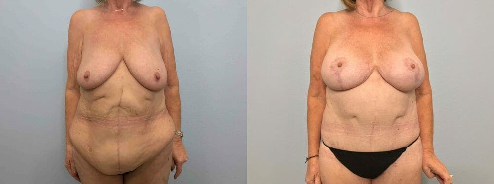 Mommy Makeover Gallery - Patient 47253843 - Image 1