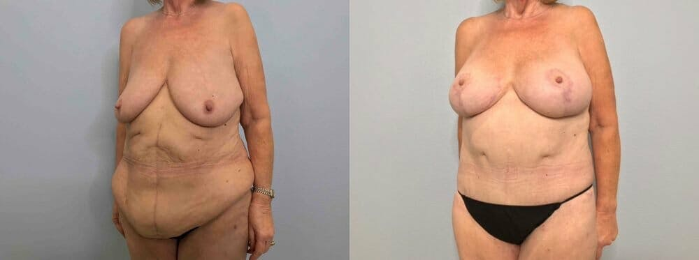Mommy Makeover Gallery - Patient 47253843 - Image 3