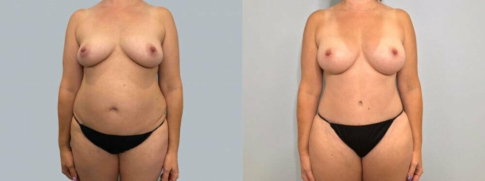 Mommy Makeover Gallery - Patient 47253855 - Image 1