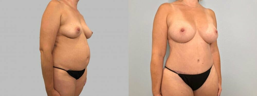 Mommy Makeover Gallery - Patient 47253855 - Image 3