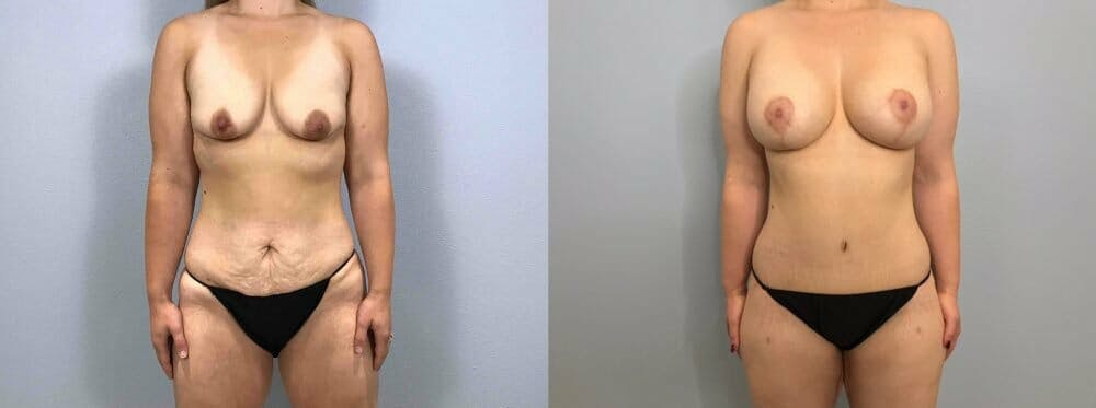 Mommy Makeover Gallery - Patient 47253864 - Image 1