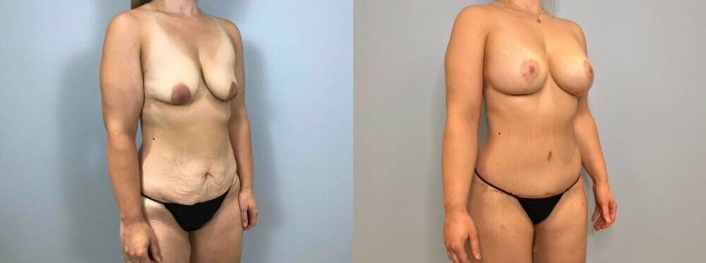 Mommy Makeover Gallery - Patient 47253864 - Image 3