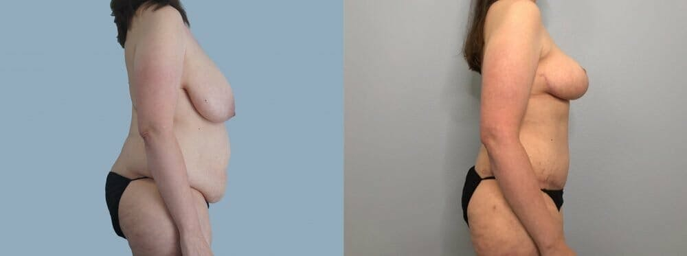 Mommy Makeover Gallery - Patient 47253870 - Image 3