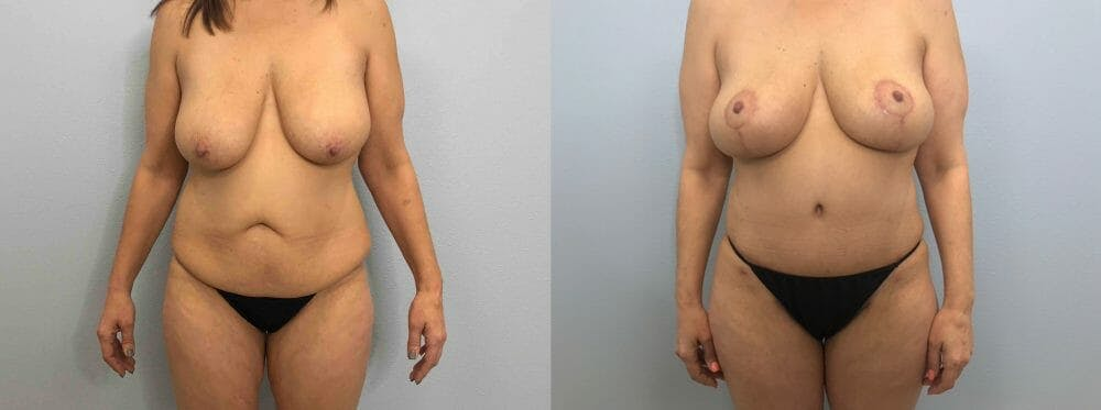Mommy Makeover Gallery - Patient 47253899 - Image 1