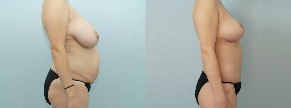 Mommy Makeover Gallery - Patient 47253902 - Image 3