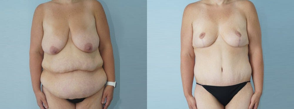 Mommy Makeover Gallery - Patient 47253911 - Image 1