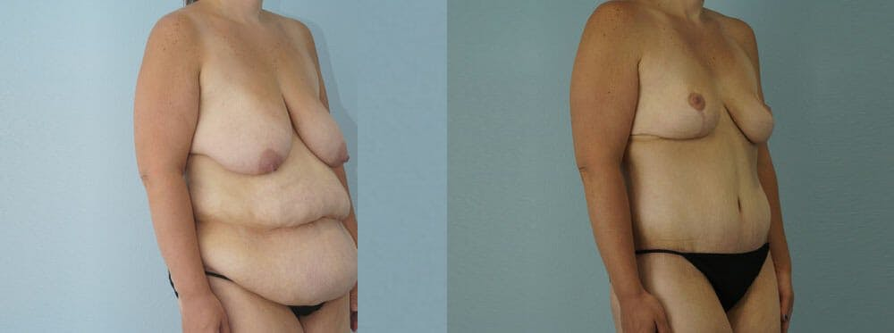 Mommy Makeover Gallery - Patient 47253911 - Image 2