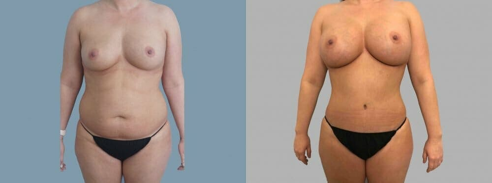 Mommy Makeover Gallery - Patient 47253913 - Image 1