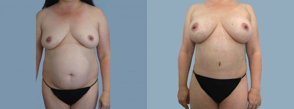Mommy Makeover Gallery - Patient 47253921 - Image 1