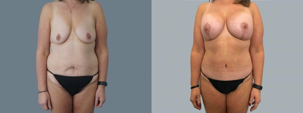 Mommy Makeover Gallery - Patient 47253935 - Image 1