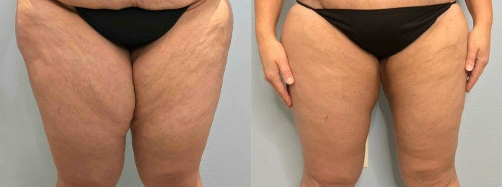 Thigh Lift Gallery - Patient 47253957 - Image 1