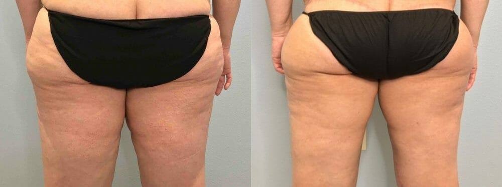 Thigh Lift Gallery - Patient 47253957 - Image 2