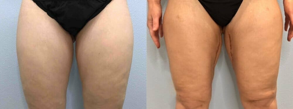 Thigh Lift Gallery - Patient 47253958 - Image 1