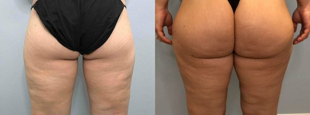 Thigh Lift Gallery - Patient 47253958 - Image 2