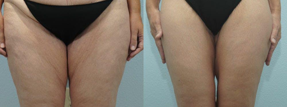 Thigh Lift Gallery - Patient 47253959 - Image 1