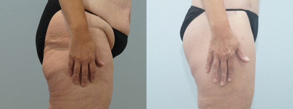 Thigh Lift Gallery - Patient 47253959 - Image 2