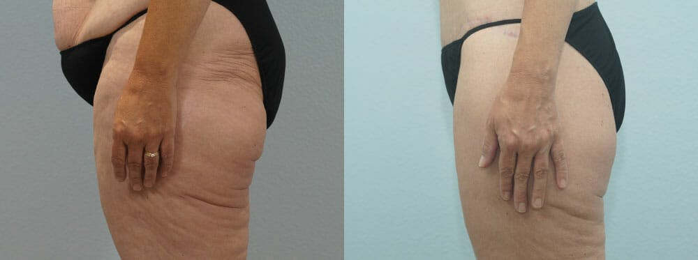 Thigh Lift Gallery - Patient 47253959 - Image 3