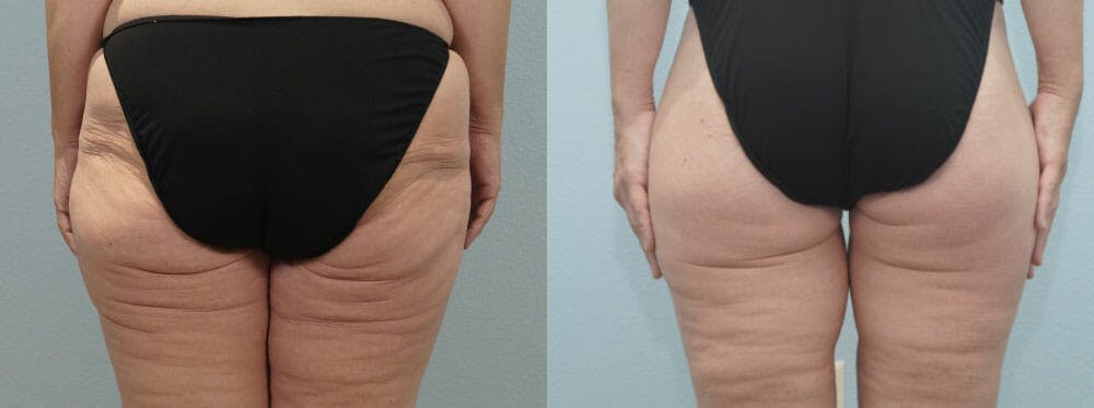 Thigh Lift Gallery - Patient 47253959 - Image 4