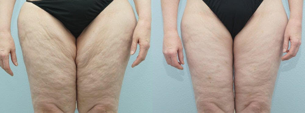Thigh Lift Gallery - Patient 47253965 - Image 1