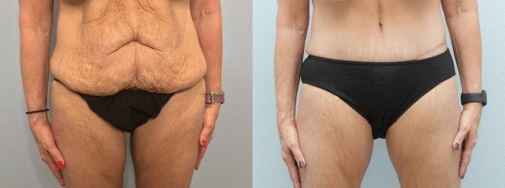 Tummy Tuck Gallery - Patient 47253975 - Image 1