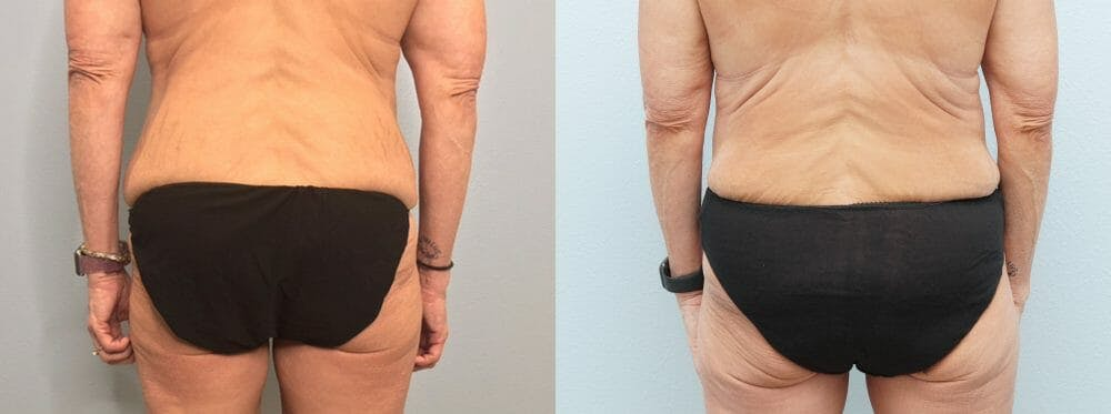Tummy Tuck Gallery - Patient 47253975 - Image 2