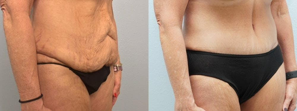 Tummy Tuck Gallery - Patient 47253975 - Image 3