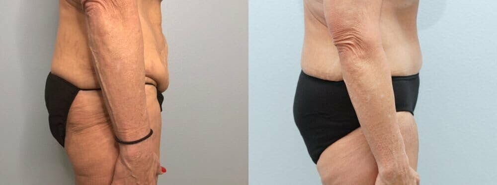 Tummy Tuck Gallery - Patient 47253975 - Image 4
