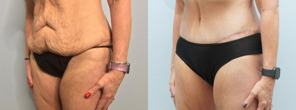 Tummy Tuck Gallery - Patient 47253975 - Image 5