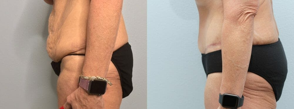 Tummy Tuck Gallery - Patient 47253975 - Image 6